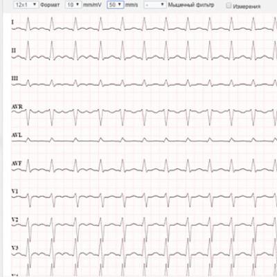 Cardioline ECGWebApp-4