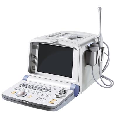 УЗИ сканер SonoScape SSI-600